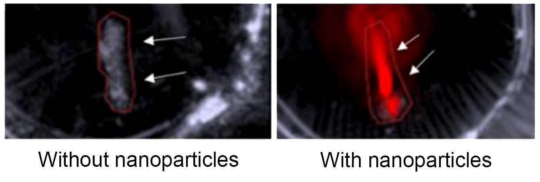 À gauche, une image de plaque d'athérome sans nanoparticules. À droite, les nanoparticules émettent des ultrasons qui sont convertis en image optique 3D. © Adv. Funct. Mater