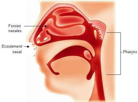 La rhinopharyngite est une atteinte inflammatoire du pharynx, associée à une atteinte des fosses nasales. Crédits : GSK.