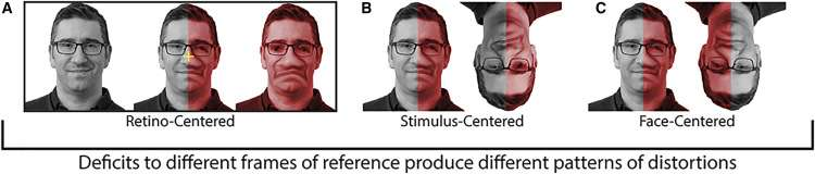 Les chercheurs répertorient trois types de distorsion visuelle : rétino-centré (A), où la distorsion dépend de la fixation, centré sur le stimulus (B) généralement du côté droit, et centré sur le visage (C), où la distorsion affecte les mêmes traits faciaux peu importe l'orientation de la tête. C'est de cette dernière forme dont semble souffrir le patient étudié. © Almeida et al. 2020, Current Biology