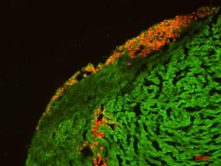 Des cellules souches embryonnaires humaines indifférenciées ont été transplantées dans des cultures organotypiques de cœur de rat. Deux mois plus tard, on retrouve ces cellules humaines, colorées ici en rouge par marquage d'antigène nucléaire humain, dans le parenchyme cardiaque de rat (coloré en vert). © Inserm, Walter Habeler