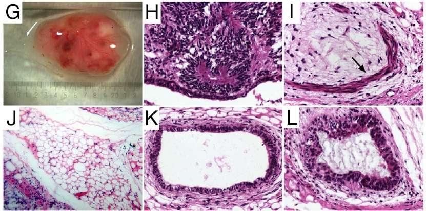 Les cellules IPS obtenues à partir de cellules adipeuses humaines ont été différenciées en plusieurs types cellulaires. Une fois implantées chez des souris, elles ont formé un tératome (G) comprenant les trois familles de tissus de l'embryon (les feuillets) : l'ectoderme, le mésoderme et l'endoderme. On reconnaît du tissu nerveux (ectoderme, photo H), du muscle lisse (mésoderme, image I, marqué par une flèche) et du tissu adipeux (mésoderme, en J) et deux tissus de l'endoderme, en l'occurrence de l'épithélium du tube digestif (K) et du système respiratoire (L). © Ning Sun et al., Pnas