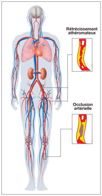 L'artérite concerne principalement les membres inférieurs. © prevention-cardio.fr