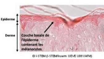 L'obtention de mélanocytes à partir de cellules souches pourra peut-être permettre de traiter le vitiligo ou l'albinisme. © Inserm
