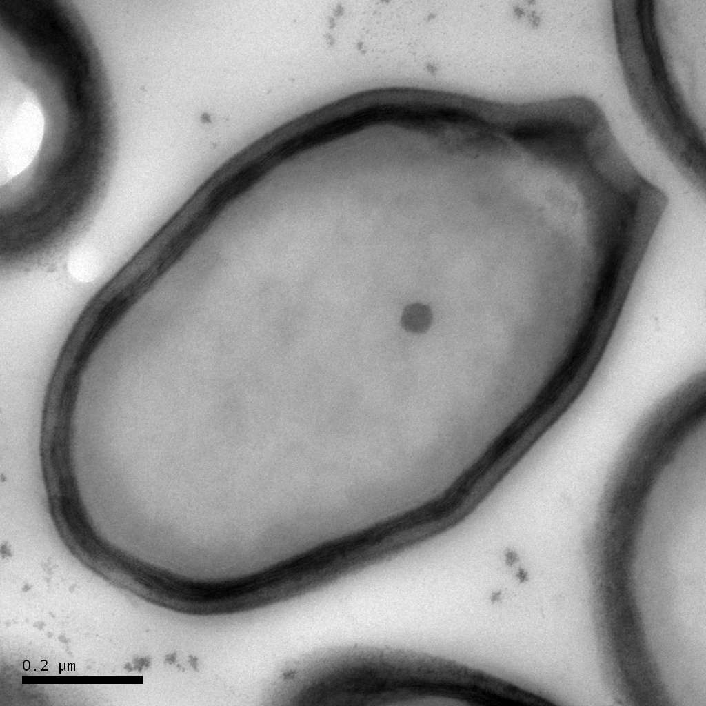 Les pandoravirus ne ressemblent pas du tout à des virus. À tel point qu'ils ont d'abord été pris pour des bactéries, faisant à peu près la même taille. Pas si bête, puisqu'ils sont peut-être leurs descendants. © Chantal Abergel et Jean-Michel Claverie