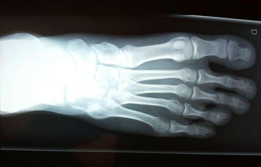 La malformation du pied creux est le plus souvent diagnostiquée à l'adolescence. ©Phovoir