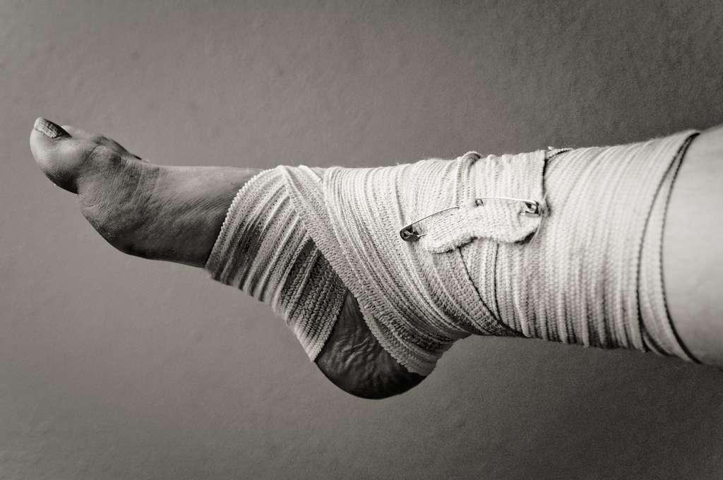 Les entorses sont des troubles courants et le plus souvent bénins des articulations. © Foxtongue, Flickr, cc by 2.0