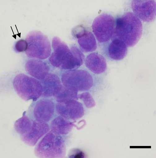 Le test ISET permet de détecter des cellules tumorales circulantes chez un patient. La barre représente 8 µm. © 2014 Ilie et al., Plos One, cc by 4.0
