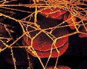 Crédits : www.swissheart.chUn caillot sanguin (thrombus), composé de globules rouges, de plaquette sanguines et de fils de fibrine.