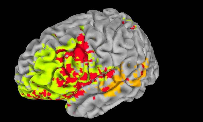 Si chez les guppys, la taille du cerveau joue clairement un rôle dans l'intelligence, il se peut bien sûr que chez l'Homme, la situation soit plus compliquée. Sur cette image en fausses couleurs sont représentées les différentes zones impliquées. Dans le cortex temporal, sur le côté de l'encéphale, la couleur orange (indiquant l'intelligence générale) domine. Au niveau du cortex préfrontal, à l'avant, on voit beaucoup de vert (fonctions exécutives) et de rouge (régions communes). Les capacités intellectuelles se chevauchent donc et sont aussi interconnectées. © Aron Barbey
