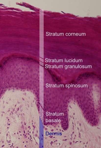 L'épiderme se compose de cinq couches, avec la stratum corneum dans la position la plus externe. © Mikael Häggström, Wikipédia, cc by sa 3.0