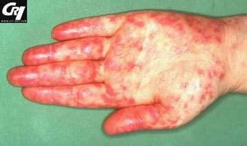 Lésions de vascularité lupique palmo-plantaire.© CNRS 2006
