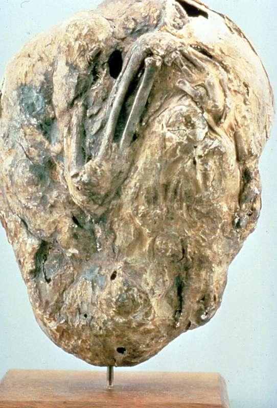 On a relevé environ 300 cas de fœtus fossilisés, ou lithopédions, dans la littérature scientifique, la grande majorité durant les 60 dernières années. Pourtant, le cas le plus ancien découvert remonterait à plus de 3.000 ans. On peut donc aisément supposer que le phénomène s'est répété à de plus nombreuses reprises dans l'histoire de l'humanité. © Medicalmuseum,; Flickr, cc by 2.0