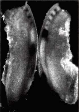 La partie caudale d'un embryon de poule âgé de deux jours a été coupée en deux. L'une des moitiés (photo de gauche) a été immédiatement plongée dans un fixateur (qui arrête toute activité vitale) tandis que l'autre (à droite) a été cultivée 30 minutes.