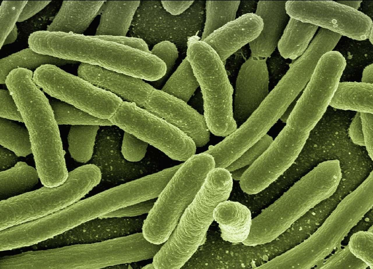 L'OCDE avertit que les infections par des bactéries multirésistantes aux antibiotiques vont se multiplier au cours des 30 prochaines années. Elles ont provoqué la mort de 33.110 personnes en Europe en 2015. © DP