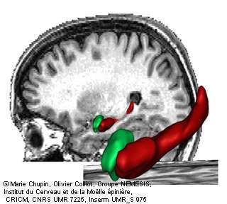 L'hippocampe est l'une des régions du cerveau les plus précocement atteintes par la maladie d'Alzheimer. L'imagerie par résonance magnétique (IRM) permet de visualiser et de délimiter cette structure in vivo. © Inserm