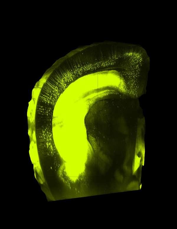 Coupe du cerveau d'une souris rendu transparent avec la solution SeeDB, puis coloré par des anticorps fluorescents. © Riken