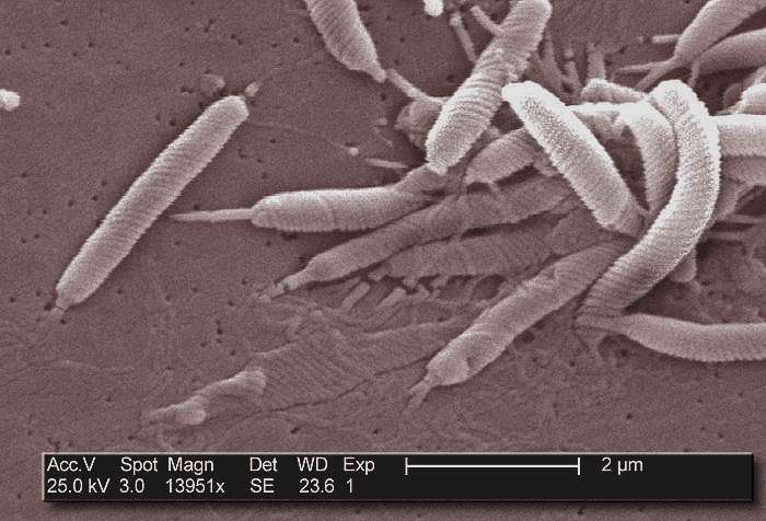 Des bactéries Helicobacter pylori vues en microscopie électronique. Le nom de cette bactérie vient de sa structure externe hélicoïdale. © Janice Carr, CDC, Wikimedia Commons, cc by sa 3.0