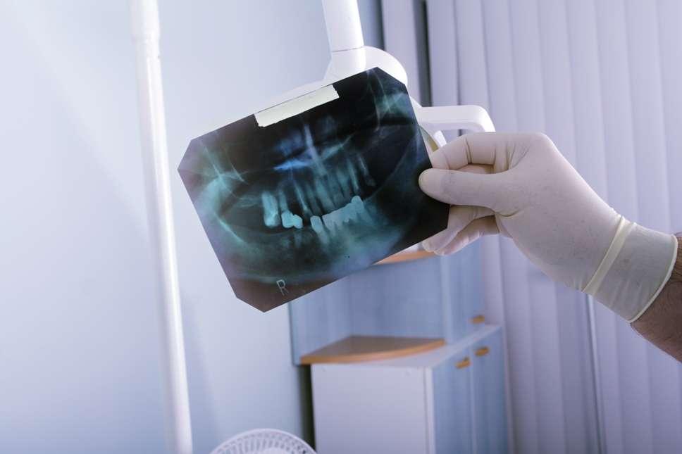 Attention aux amalgames entre radiographie des dents et méningiome. Les pratiques médicales d'un pays à l'autre ne sont pas les mêmes, et les règles semblent plus strictes en France à ce niveau. © Prometeus | Stock Free Images & Dreamstime Stock Photos