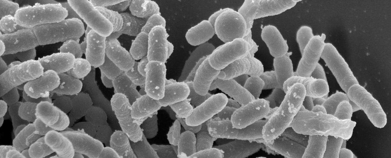 Yersinia pestis, le bacille responsable de la peste bubonique et pulmonaire. © Institut Pasteur
