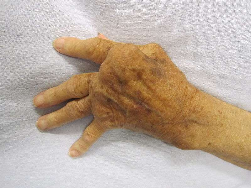 La polyarthrite rhumatoïde provoque une déformation des articulations. © James Heilman, Wikimedia, CC by-sa 3.0
