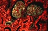 Crédits : INSERM 1990.Cortex de rein humain normal. Coloration du glomérule en vert, et en rouge cellules épithéliales des tubes contournés proximaux. Microscopie à fluorescence (immunofluorescence polychromatique).