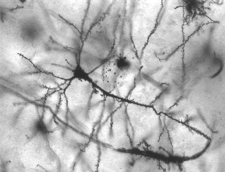 Les neurones testés chez la souris par les chercheurs dans cette étude se trouvaient dans l'hippocampe, comme ceux de cette photo. © MethoxyRoxy, Wikimedia Commons, cc by sa 2.5