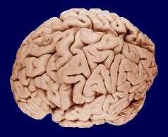 Le cerveau se divise en plusieurs lobes, chacun présentant une fonction particulière. © WriterHound / Licence Creative Commons