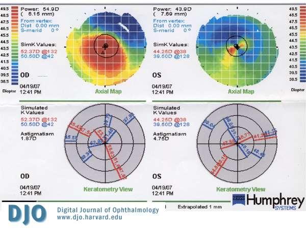 La topographie cornéenne permet d'analyser la courbure de la cornée. © Digital Journal of Ophtalmology