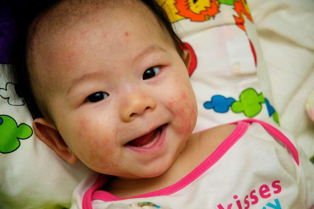 L'eczéma atopique apparaît généralement avant l'âge de 18 mois et disparaît souvent à l'âge adulte. Le staphylocoque doré pourrait être une des causes de déclenchement de la maladie © C.K. Koay, Flickr, cc by nc 2.0