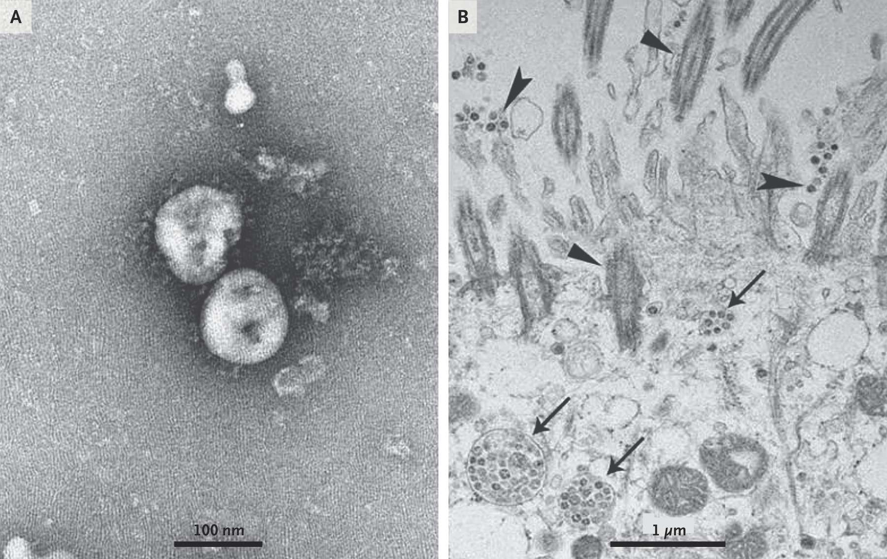 A. Des particules libres du virus 2019-nCoV photographiées en microscopie électronique en coloration négative. B. Les particules virales dans les cellules de l'épithélium respiratoire des patients infectés sont désignés par des flèches. © Zhu, et al. NEJM, janvier 2020