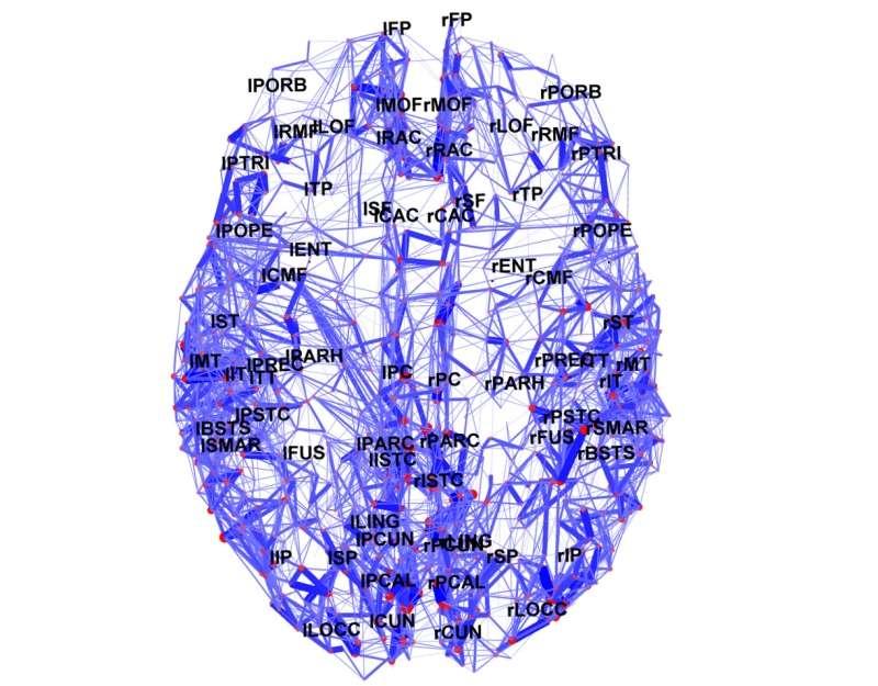 La carte en 3D montre les connexions entre les régions connues du cortex cérébral humain. © Courtesy of Indiana University