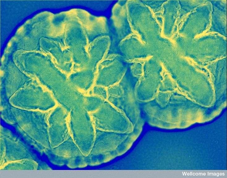 Les bactéries sont d'une extraordinaire diversité. Ici, ces Aggregatibacter actinomycetemcomitans sont strictement humaines et vivent dans notre bouche. Cependant, elles peuvent parfois devenir pathogènes, causant des endocardites (infection de la paroi interne du cœur) ou des infections parodontales (du tissu de soutien des dents). © Derren Ready, Wellcome Images, Flickr, cc by nc nd 2.0