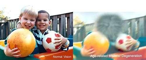 Comparaison entre vision normale et vision d'un sujet atteint de DMLA. Crédit : National Eye Institute, National Institutes of Health