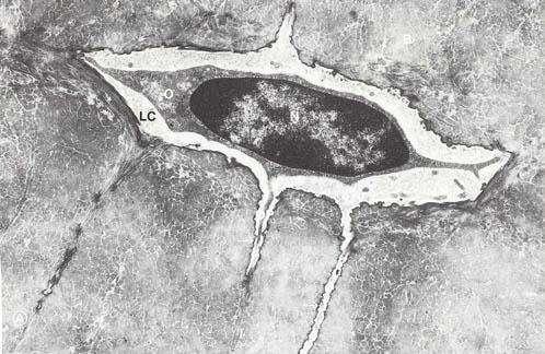 L'ostéocyte est une cellule allongée dotée de prolongements. © Domaine public