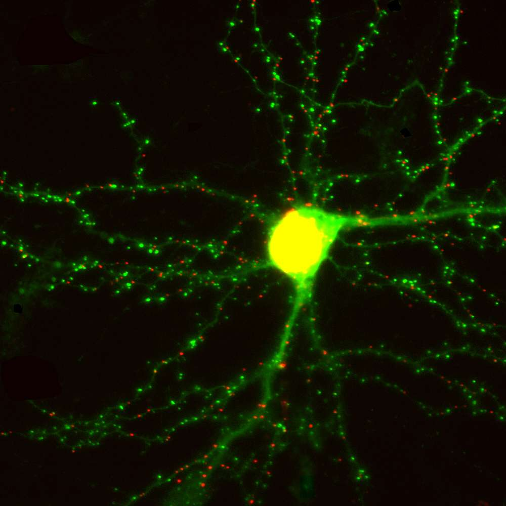 Un neurone en culture. Les synapses excitatrices et inhibitrices sont respectivement en vert et en rouge. © Don Arnold, DP