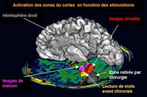 La lecture ou comment la culture s'inscrit dans notre cerveau
