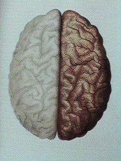 Latéralité du cerveau et dépression