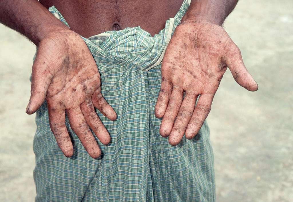 L'eau consommée en Chine peut afficher un taux élevé d'arsenic. L'ingestion prolongée de cet élément entraîne une hyperkératose des mains et des pieds. Elle se manifeste par l'apparition de taches sur les membres et résulte d'une réaction inflammatoire. Si elle n'est pas traitée, l'hyperkératose peut se compliquer et mener à l'amputation du membre. © waterdotorg, Flickr, cc by nc sa 2.0