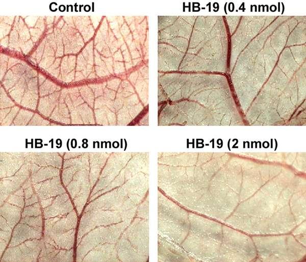 HB-19 inhibe la formation de vaisseaux sanguins. En haut à gauche, le contrôle, ensuite les résultats avec des quantités croissantes (en nanomoles). © PlosOne/Les auteurs de l'étude