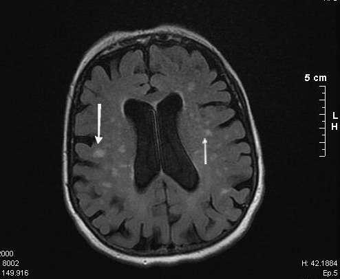 La leucoaraïose est une démence vasculaire dont les lésions vasculaires sont visibles par imagerie du cerveau par IRM (taches blanches). © Yakafaucon / Licence Creative Commons