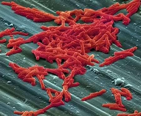 Clostridium difficile, une bactérie intestinale anaérobie, est le principal agent responsable de la diarrhée chez les patients sous antibiothérapie. La greffe fécale serait une alternative de traitement prometteuse. © AJC1, Flickr, cc by nc sa 2.0