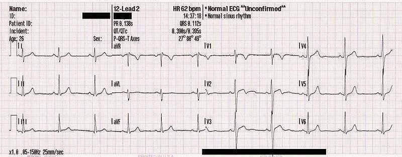 La VFC peut être mesurée par électrocardiogramme. © MoodyGroove / domaine public