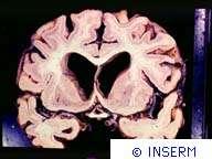Crédits : Maladie d'alzheimer. Coupe de cerveau humain, atrophie corticale et dilatation ventriculaire.