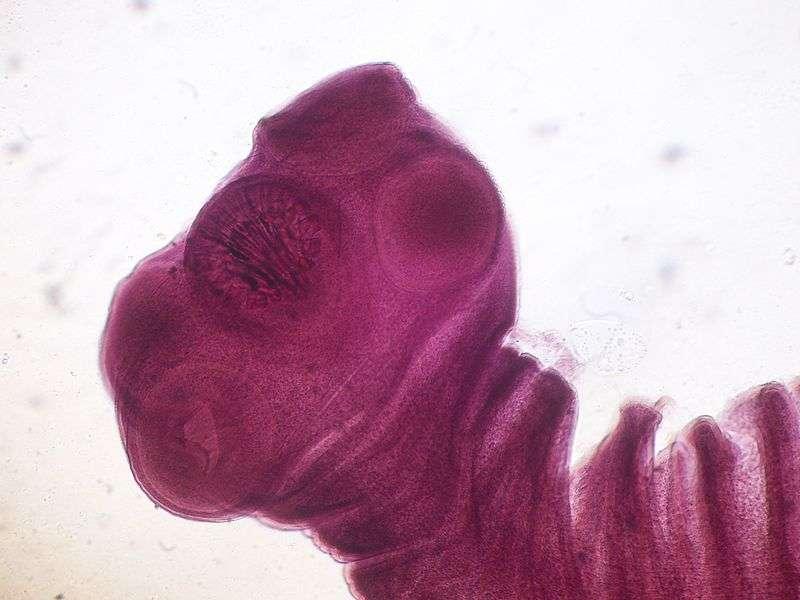 Taenia solium se développe d'environ un mètre tous les six mois pour atteindre une dizaine de mètres à la forme adulte. © Roberto J. Galindo, Wikimedia Commons, cc by sa 3.0