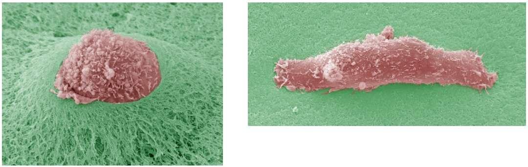 A gauche, une cellule tumorale perce une épaisseur de Matrigel, mimant la membrane basale. A droite, les protéases ont été inhibées, la cellule ne peut pas perforer la surface. © Renaud Poincloux et Philippe Chavrier/CNRS/Institut Curie