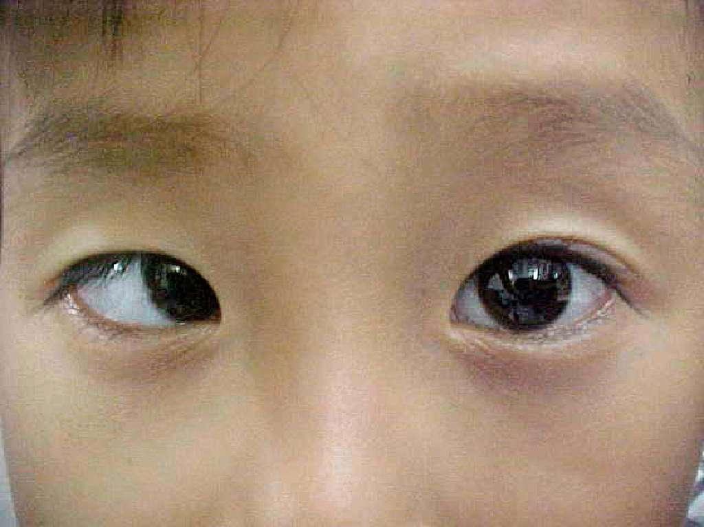 Le strabisme, avec cet exemple d'ésotropie, touche principalement les enfants et doit être corrigé le plus tôt possible pour éviter au maximum les problèmes d'acuité visuelle. © Community Eye Health, Flickr, cc by nc 2.0