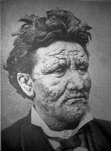 Les malades de la lèpre bénéficient aujourd'hui d'un traitement efficace. © Domaine public