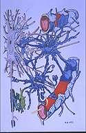 Crédits : INSERM 97.La sclérose en plaques détruit à la fois la gaine de myéline (en vert) entourant les fibres nerveuses des neurones (en gris) et les cellules gliales (en bleu) dont les pieds isolent les vaisseaux sang