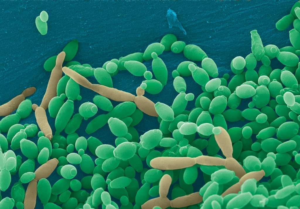 L'étrange maladie de Kawasaki, touchant surtout le Japon bien que celle-ci progresse aux quatre coins du monde, pourrait être due à des champignons microscopiques du genre Candida, répandus par les vents. © Djspring, Wikipédia, cc by sa 3.0