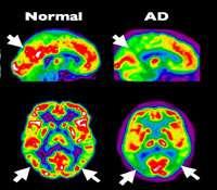Tomographie par émission de positons (PET Scan en anglais) d'un cerveau en bonne santé en comparaison avec un cerveau atteint d'Alzheimer à un stade précoce. © Institut Douglas, Flickr, cc by nc sa 2.0